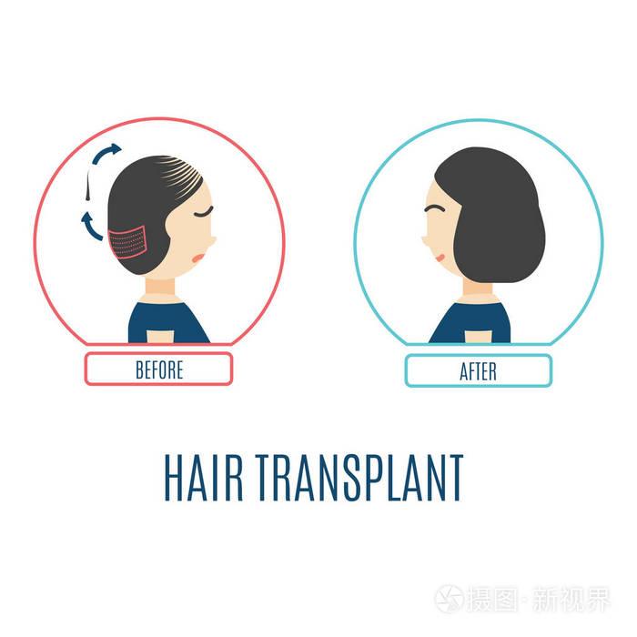 头发手术种植多少钱
