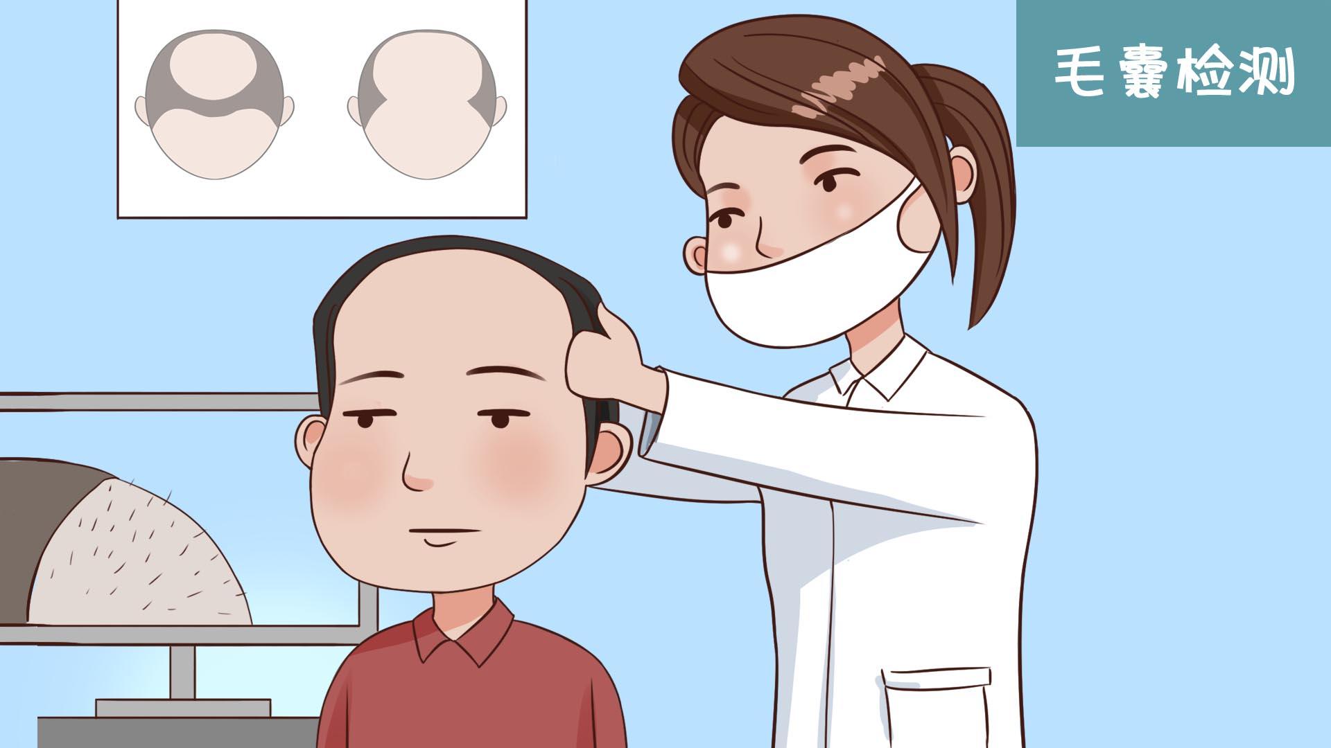 发际线植发有效果吗