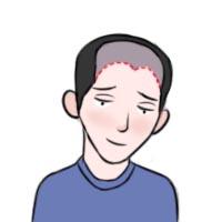 植发医院需要怎么进行选择呢